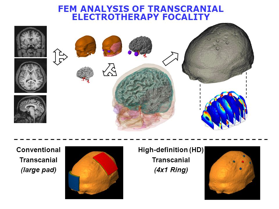 High-definition (HD) Transcanial (4x1 Ring) Conventional Transcanial (large pad) FEM ANALYSIS OF TRANSCRANIAL ELECTROTHERAPY FOCALITY