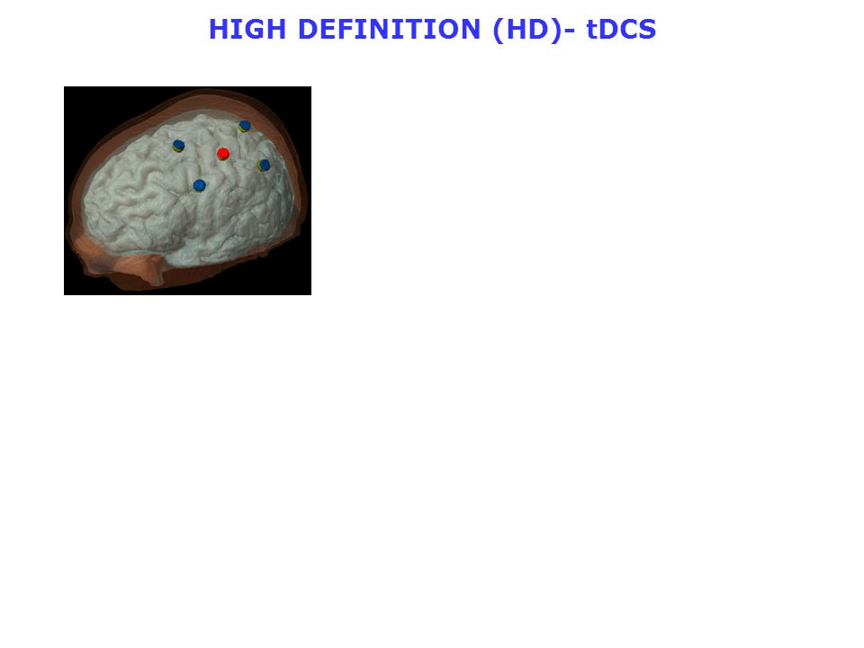 HIGH DEFINITION (HD)- tDCS
