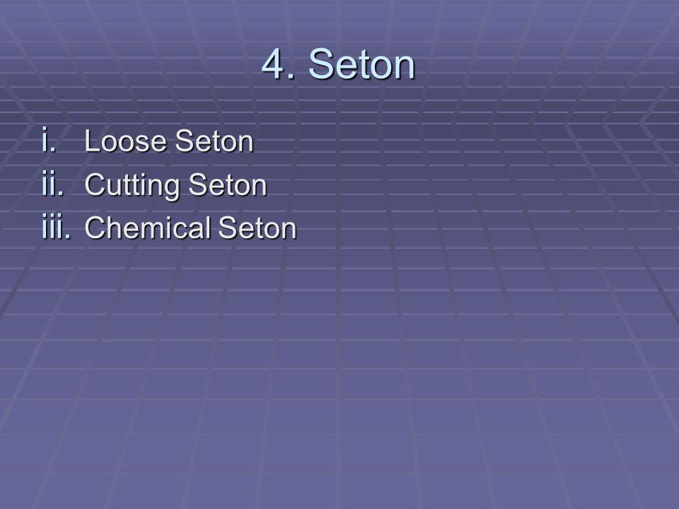 4. Seton i. Loose Seton ii. Cutting Seton iii. Chemical Seton