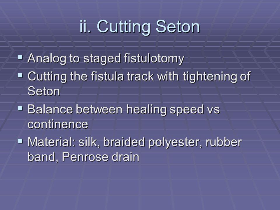 ii. Cutting Seton Analog to staged fistulotomy Analog to staged fistulotomy Cutting the fistula track with tightening of Seton Cutting the fistula tra