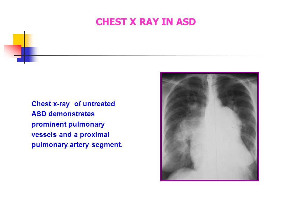 The chest x-ray demonstrates prominent pulmonary vessels and a proximal pulmonary artery segment. CHEST X RAY IN ASD