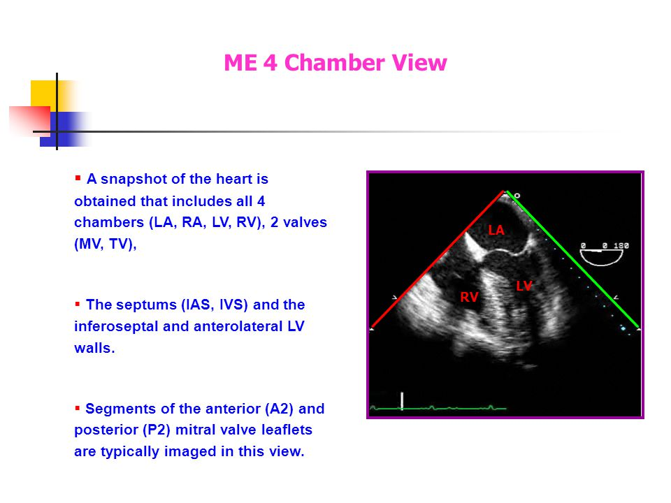 A snapshot of the heart is obtained that includes all 4 chambers (LA, RA, LV, RV), 2 valves (MV, TV), The septums (IAS, IVS) and the inferoseptal and