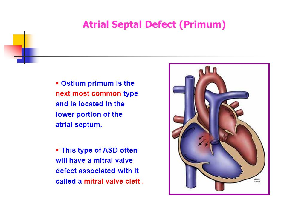 Secundum defects are the most common, accounting for 6-10% of all congenital lesions. Secundum defects