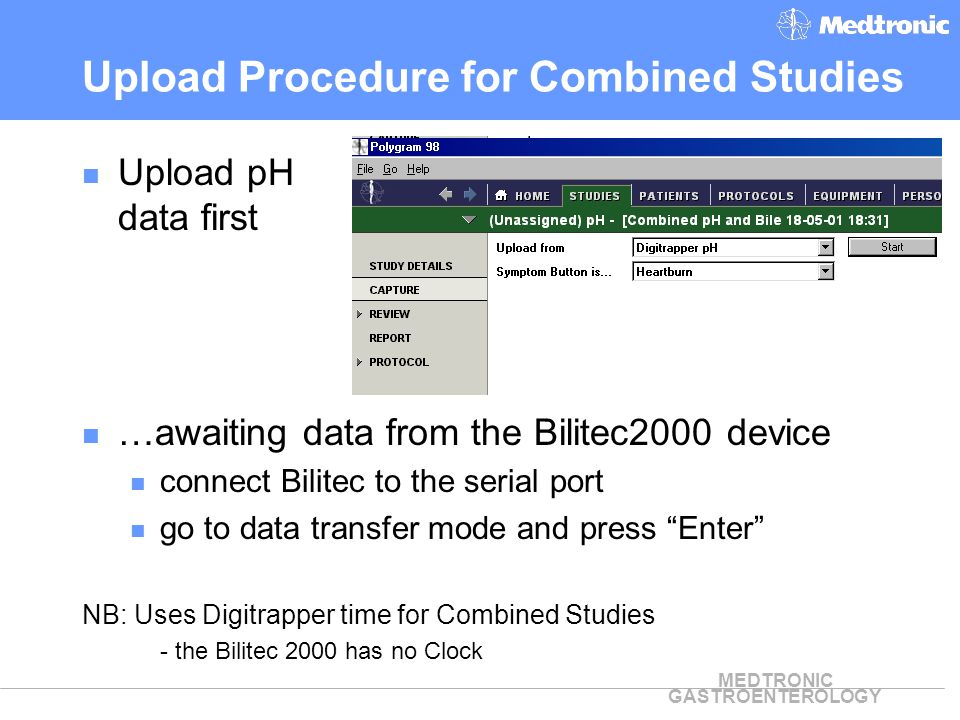 MEDTRONIC GASTROENTEROLOGY Upload Procedure for Combined Studies Upload pH data first …awaiting data from the Bilitec2000 device connect Bilitec to th