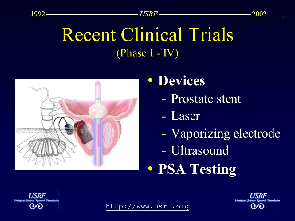 15 http://www.usrf.org USRF20021992 Recent Clinical Trials (Phase I - IV) Devices Devices -Prostate stent -Laser -Vaporizing electrode -Ultrasound PSA Testing PSA Testing