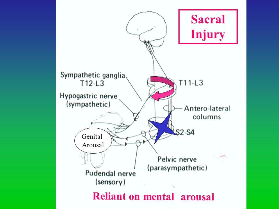 Sacral Injury Genital Arousal Reliant on mental arousal