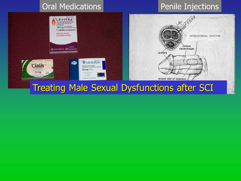 Oral MedicationsPenile Injections Treating Male Sexual Dysfunctions after SCI