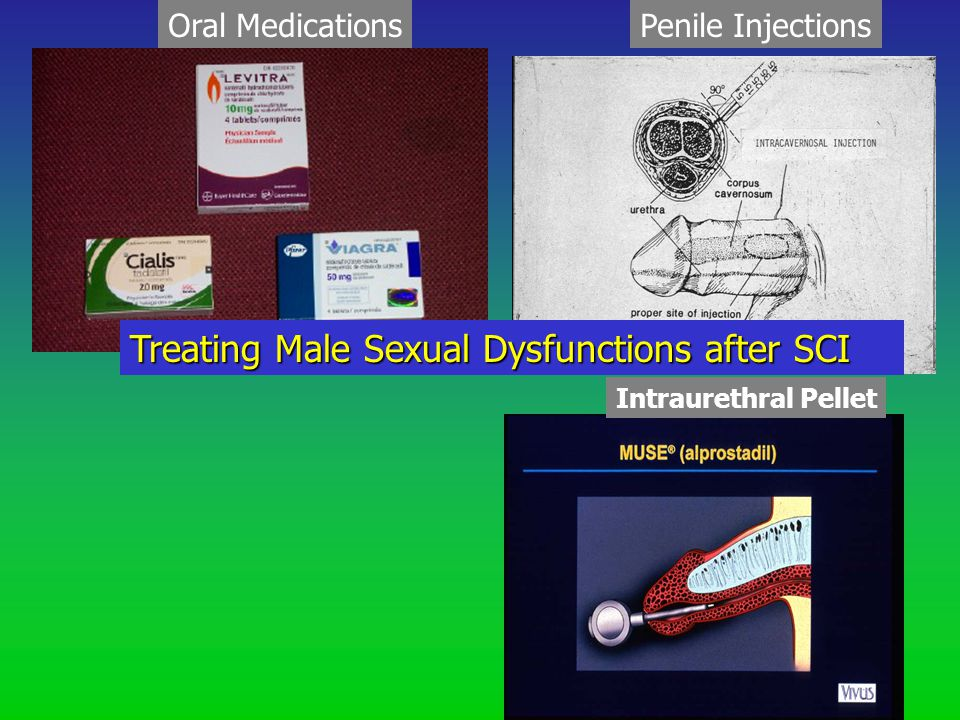 Oral MedicationsPenile Injections Intraurethral Pellet Treating Male Sexual Dysfunctions after SCI