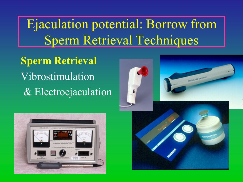 Ejaculation potential: Borrow from Sperm Retrieval Techniques Sperm Retrieval Vibrostimulation & Electroejaculation