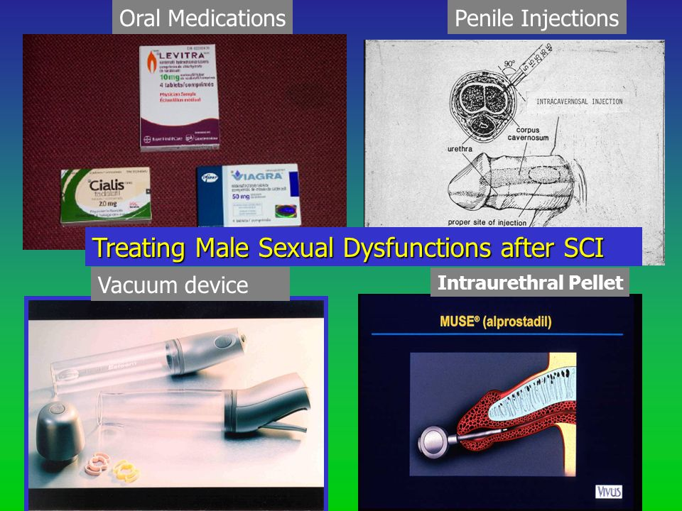 Oral MedicationsPenile Injections Vacuum device Intraurethral Pellet Treating Male Sexual Dysfunctions after SCI
