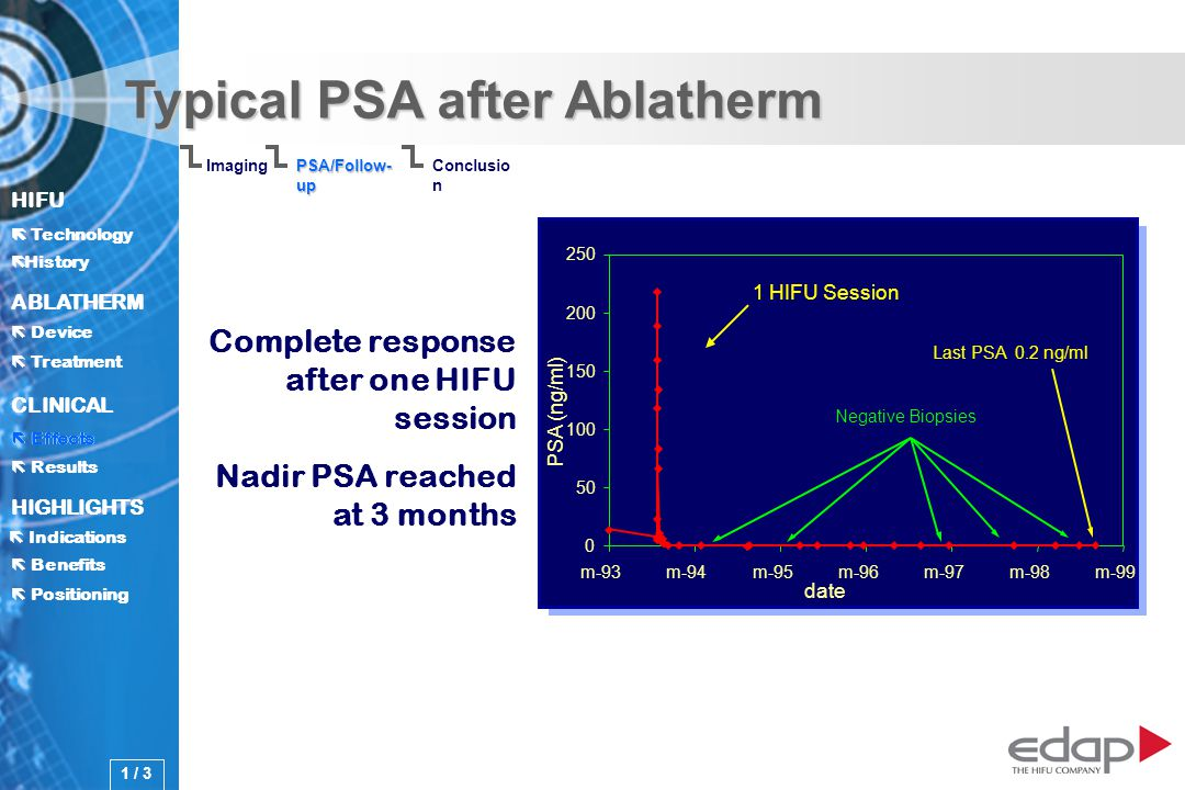 HIFU ë History History Technology ABLATHERM Treatment Positioning Benefits Device CLINICAL Effects Results Indications HIGHLIGHTS Typical PSA after Ablatherm 0 50 100 150 200 250 m-93m-94m-95m-96m-97m-98m-99 date 1 HIFU Session Last PSA 0.2 ng/ml Negative Biopsies Complete response after one HIFU session Nadir PSA reached at 3 months Imaging Conclusio n PSA/Follow- up PSA (ng/ml) Effects 1 / 3