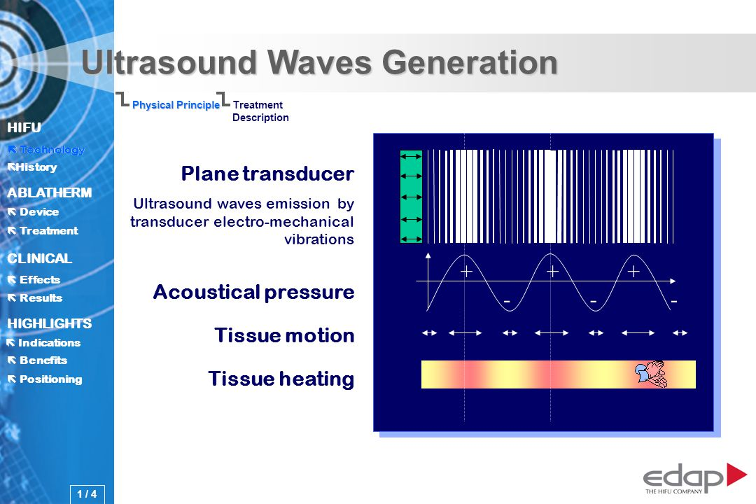 HIFU ë History History Technology ABLATHERM Treatment Positioning Benefits Device CLINICAL Effects Results Indications HIGHLIGHTS Ultrasound Waves Generation Plane transducer Ultrasound waves emission by transducer electro-mechanical vibrations Tissue motion Tissue heating Acoustical pressure +++ --- Physical Principle Treatment Description Technology 1 / 4