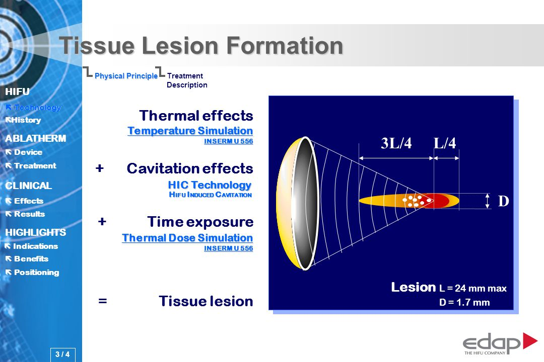 HIFU ë History History Technology ABLATHERM Treatment Positioning Benefits Device CLINICAL Effects Results Indications HIGHLIGHTS Tissue Lesion Formation 3L/4L/4 D Thermal effects + Cavitation effects + Time exposure = Tissue lesion Physical Principle Treatment Description Technology 3 / 4 Temperature Simulation INSERM U 556 Temperature Simulation INSERM U 556 Thermal Dose Simulation INSERM U 556 Thermal Dose Simulation INSERM U 556 Lesion L = 24 mm max D = 1.7 mm HIC Technology H IFU I NDUCED C AVITATION