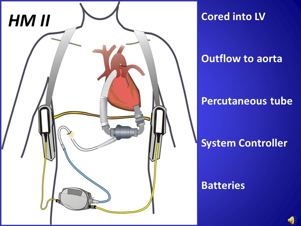 Cored into LV Outflow to aorta Percutaneous tube System Controller Batteries HM II
