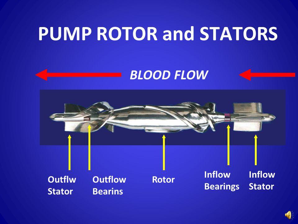 PUMP ROTOR and STATORS Inflow Stator Inflow Bearings RotorOutflow Bearins Outflw Stator BLOOD FLOW