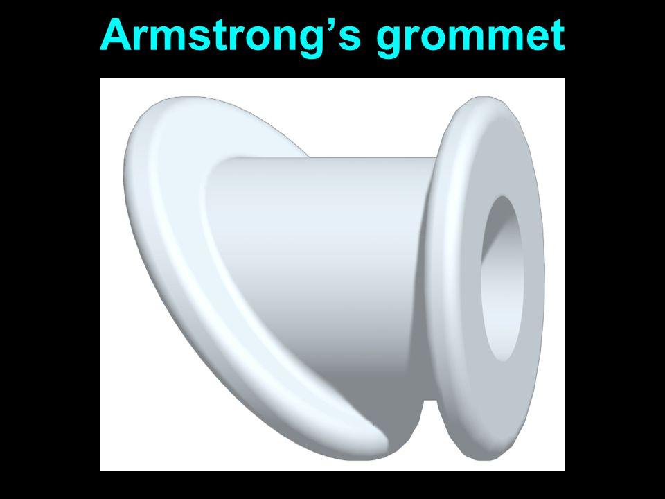 Armstrongs grommet