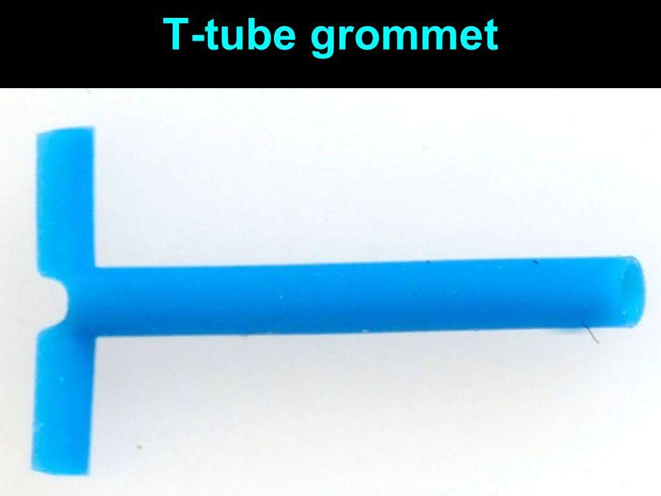 T-tube grommet