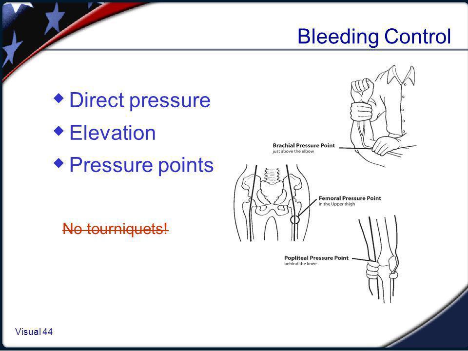 Visual 1.44 Visual 44 Bleeding Control Direct pressure Elevation Pressure points No tourniquets!