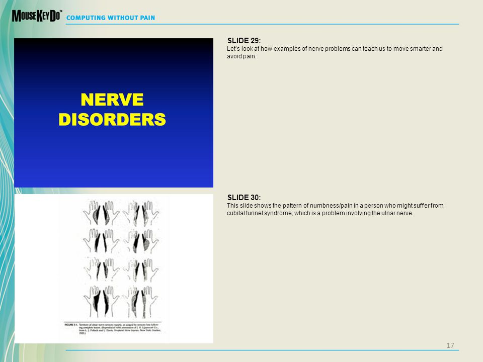 SLIDE 29: Lets look at how examples of nerve problems can teach us to move smarter and avoid pain. SLIDE 30: This slide shows the pattern of numbness/