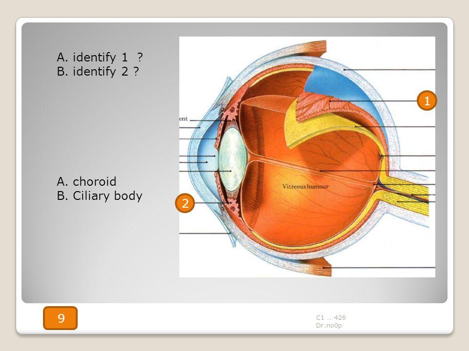A. identify 1 ? B. identify 2 ? A. choroid B. Ciliary body 1 2 C1.. 426 Dr.no0p 9