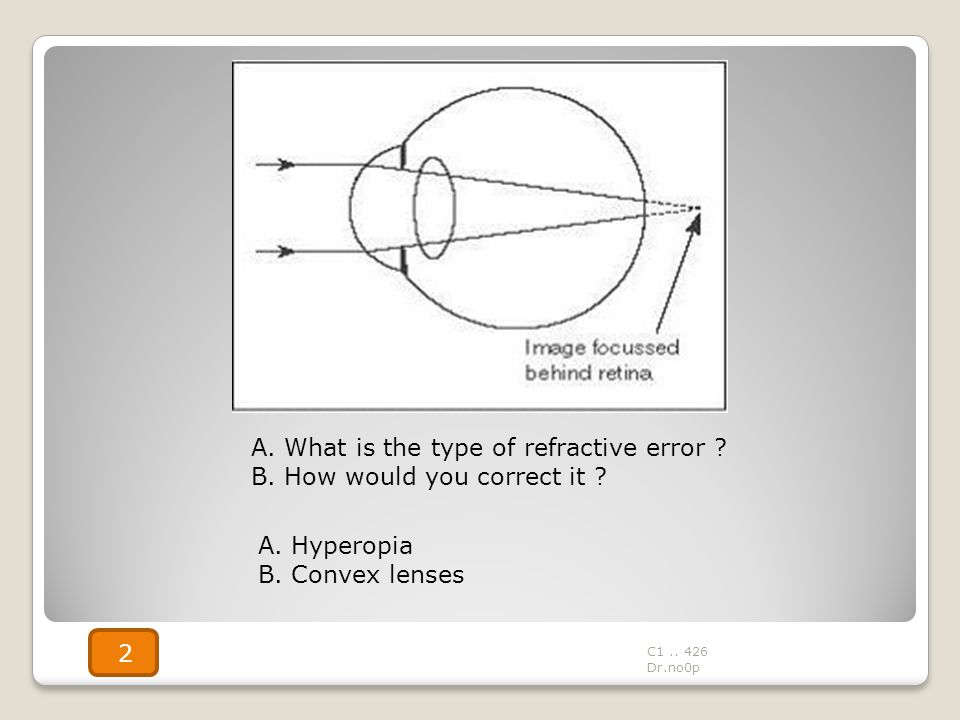 A. What is the type of refractive error ? B. How would you correct it ? A. Hyperopia B. Convex lenses C1.. 426 Dr.no0p 2