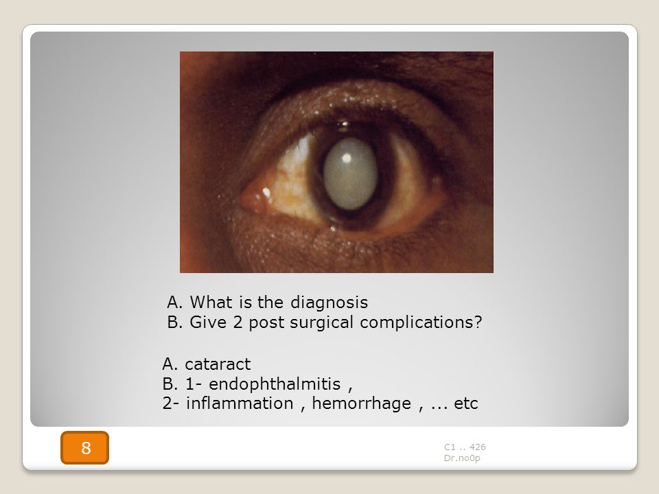 A. cataract B. 1- endophthalmitis, 2- inflammation, hemorrhage,... etc A. What is the diagnosis B. Give 2 post surgical complications? C1.. 426 Dr.no0