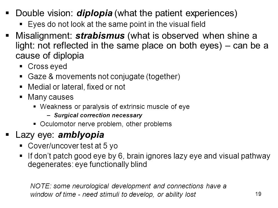 19 Double vision: diplopia (what the patient experiences) Eyes do not look at the same point in the visual field Misalignment: strabismus (what is obs