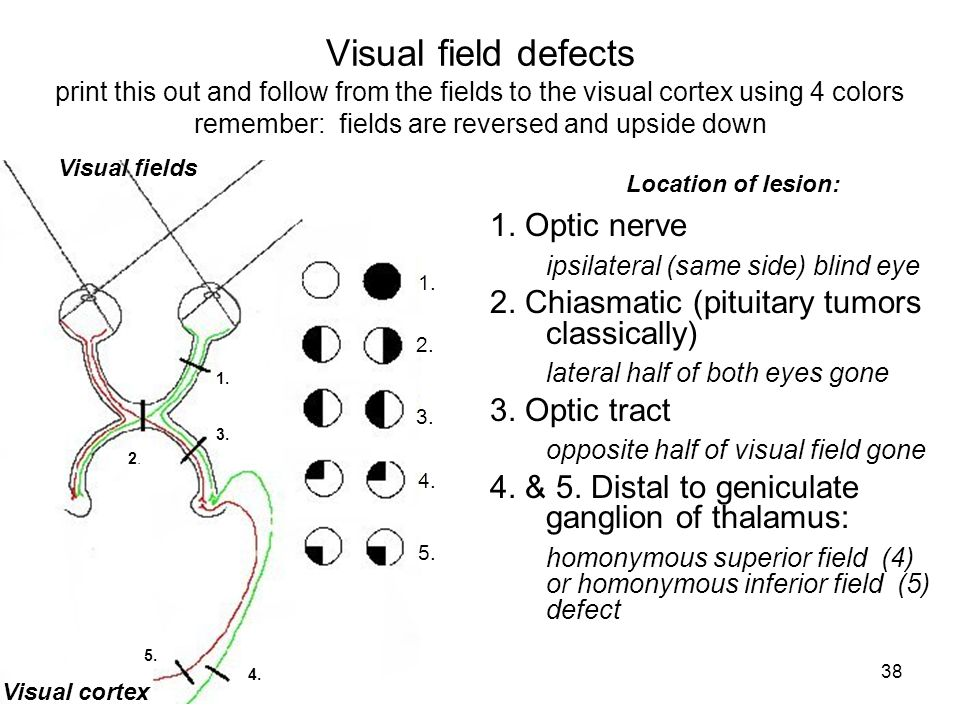 38 Visual field defects print this out and follow from the fields to the visual cortex using 4 colors remember: fields are reversed and upside down 1.