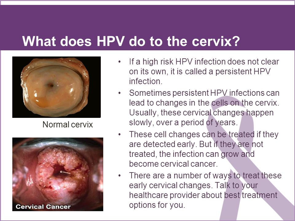What does HPV do to the cervix? If a high risk HPV infection does not clear on its own, it is called a persistent HPV infection. Sometimes persistent