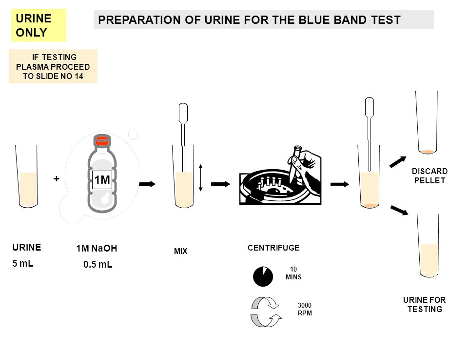 IF TESTING PLASMA PROCEED TO SLIDE NO 14 PREPARATION OF URINE FOR THE BLUE BAND TEST URINE 5 mL 1M NaOH 0.5 mL + CENTRIFUGE MIX URINE FOR TESTING 10 M