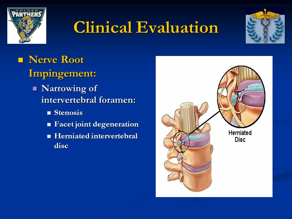 Clinical Evaluation