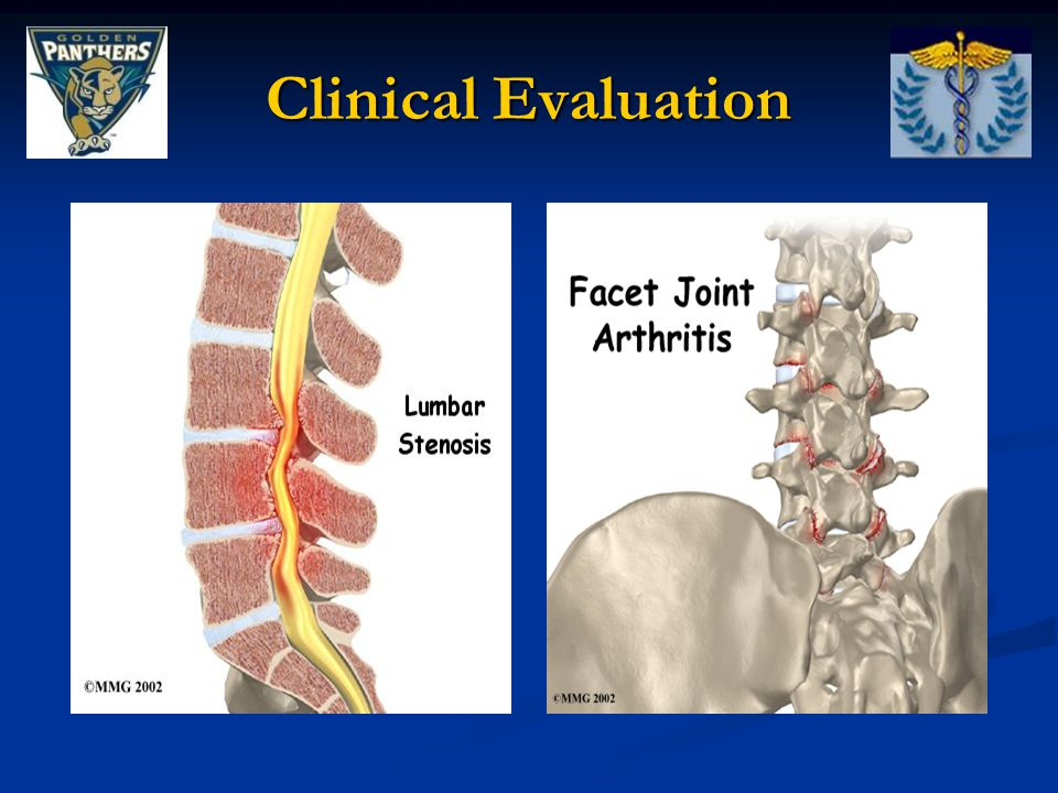 On-Field Evaluation History: History: Location of pain: Location of pain: Localized in vertebral column – disc rupture, sprain, facet pathology Localized in vertebral column – disc rupture, sprain, facet pathology Radiating pain into extremities – spinal nerve root pathology Radiating pain into extremities – spinal nerve root pathology Pain parallel to vertebral column – muscle spasm Pain parallel to vertebral column – muscle spasm Peripheral symptoms: Peripheral symptoms: Nerve root impingement Nerve root impingement MOI: MOI: Rotational forces, hyperextension, repetitive stress Rotational forces, hyperextension, repetitive stress