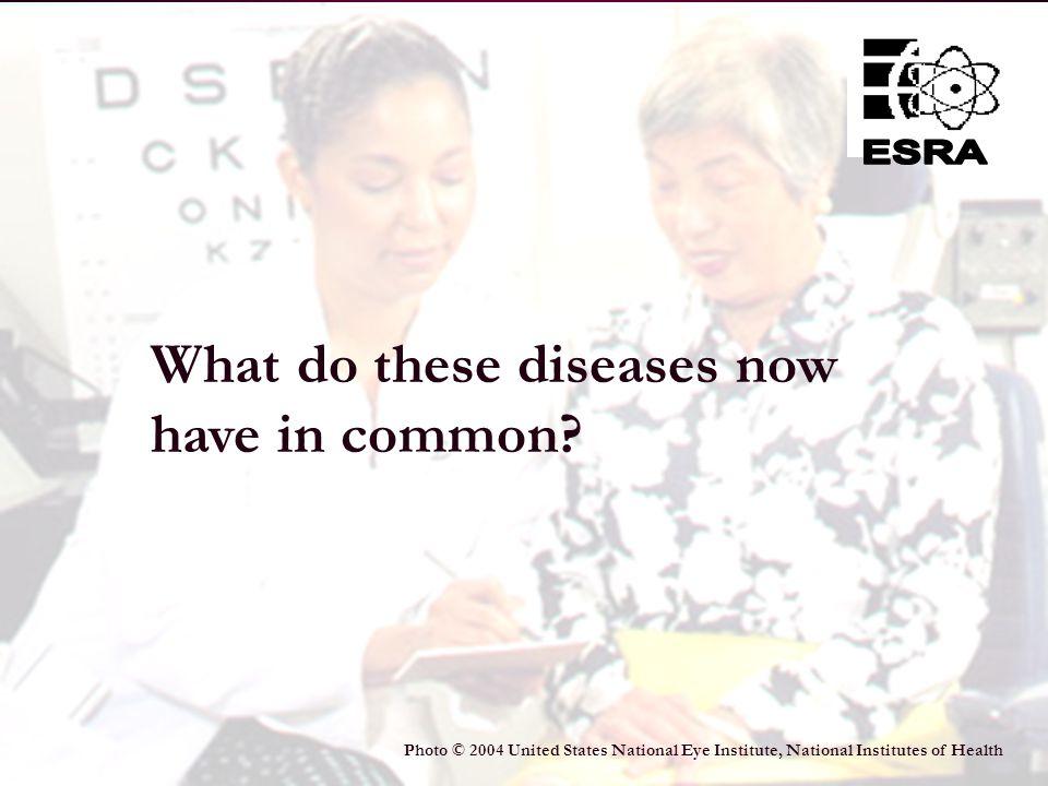 15 Age-Related Macular Degeneration Diabetic Retinopathy CataractsGlaucoma