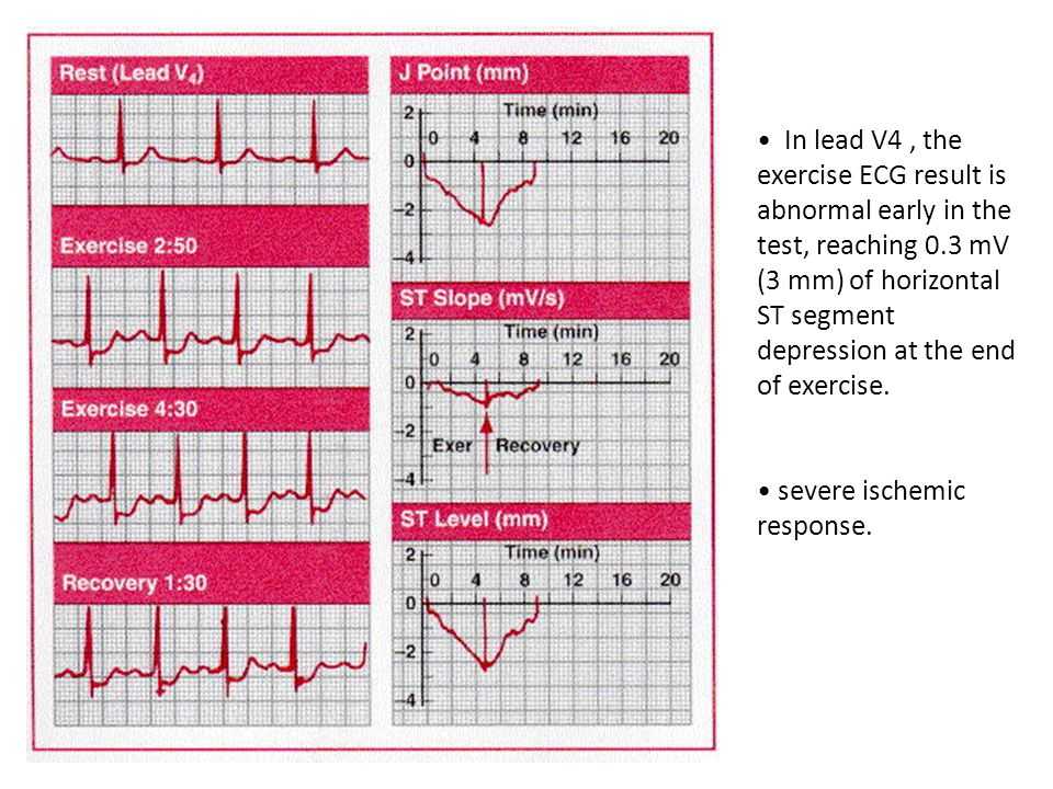 In lead V4, the exercise ECG result is abnormal early in the test, reaching 0.3 mV (3 mm) of horizontal ST segment depression at the end of exercise.