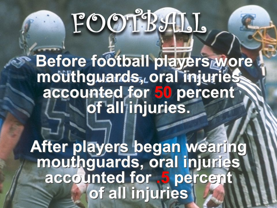 Before football players wore mouthguards, oral injuries accounted for 50 percent of all injuries.