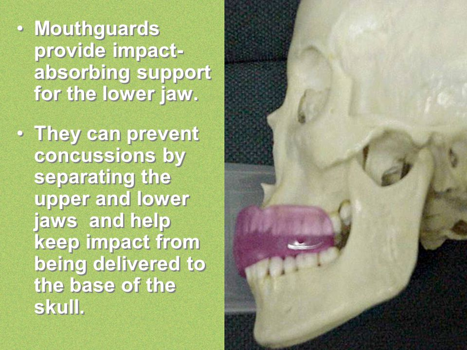 Mouthguards provide impact- absorbing support for the lower jaw. They can prevent concussions by separating the upper and lower jaws and help keep imp