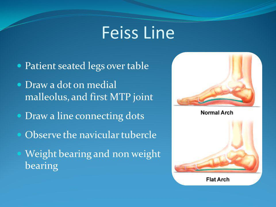 Tap or Percussion Test Patient sitting with feet over tables edge Passively dorsiflex patient Apply a firm tap to patients heel Pain is indicative of