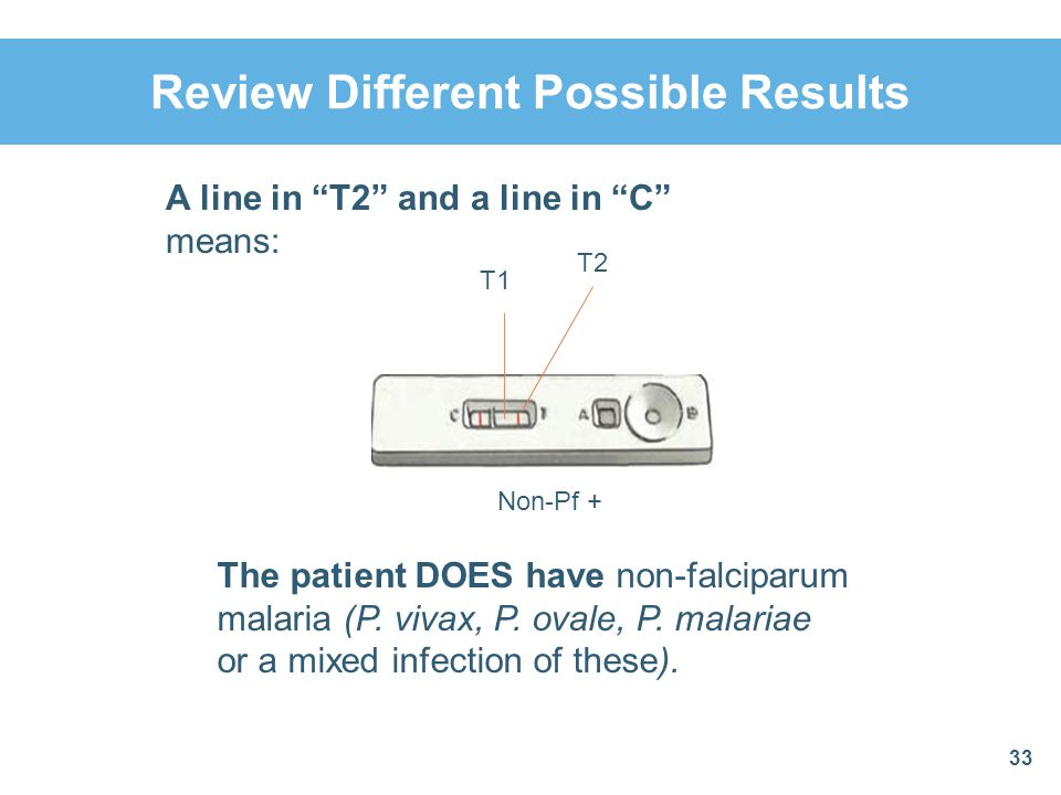 Review Different Possible Results 33 A line in T2 and a line in C means: Non-Pf + T1 T2 The patient DOES have non-falciparum malaria (P. vivax, P. ova