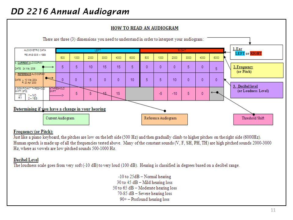 11 DD 2216 Annual Audiogram