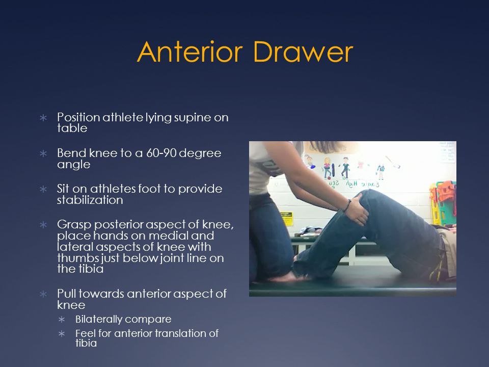 Anterior Drawer Position athlete lying supine on table Bend knee to a 60-90 degree angle Sit on athletes foot to provide stabilization Grasp posterior aspect of knee, place hands on medial and lateral aspects of knee with thumbs just below joint line on the tibia Pull towards anterior aspect of knee Bilaterally compare Feel for anterior translation of tibia