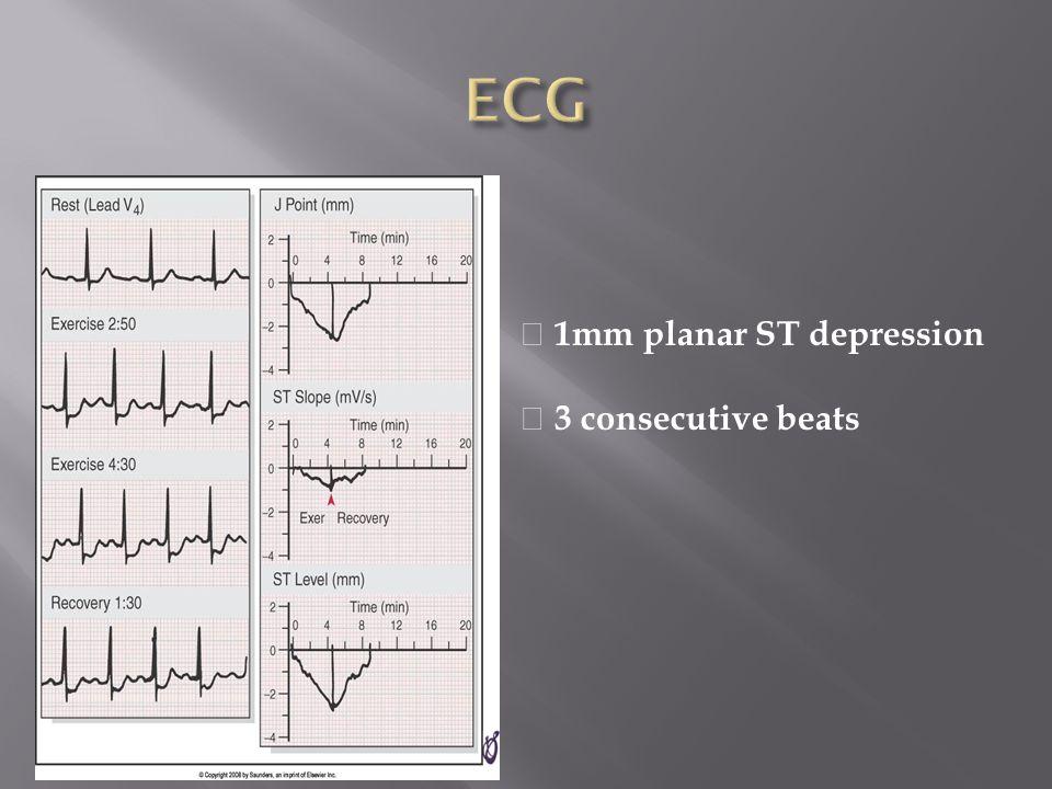 1mm planar ST depression 3 consecutive beats