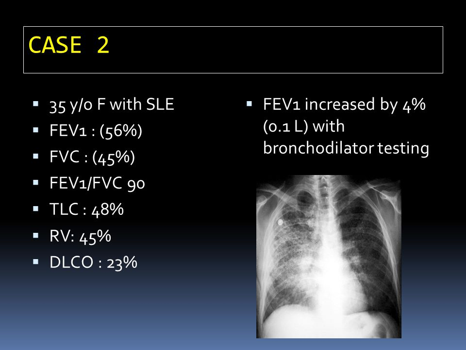 CASE 2 35 y/o F with SLE FEV1 : (56%) FVC : (45%) FEV1/FVC 90 TLC : 48% RV: 45% DLCO : 23% FEV1 increased by 4% (0.1 L) with bronchodilator testing