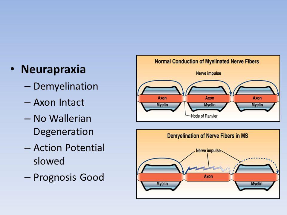 Neurapraxia – Demyelination – Axon Intact – No Wallerian Degeneration – Action Potential slowed – Prognosis Good