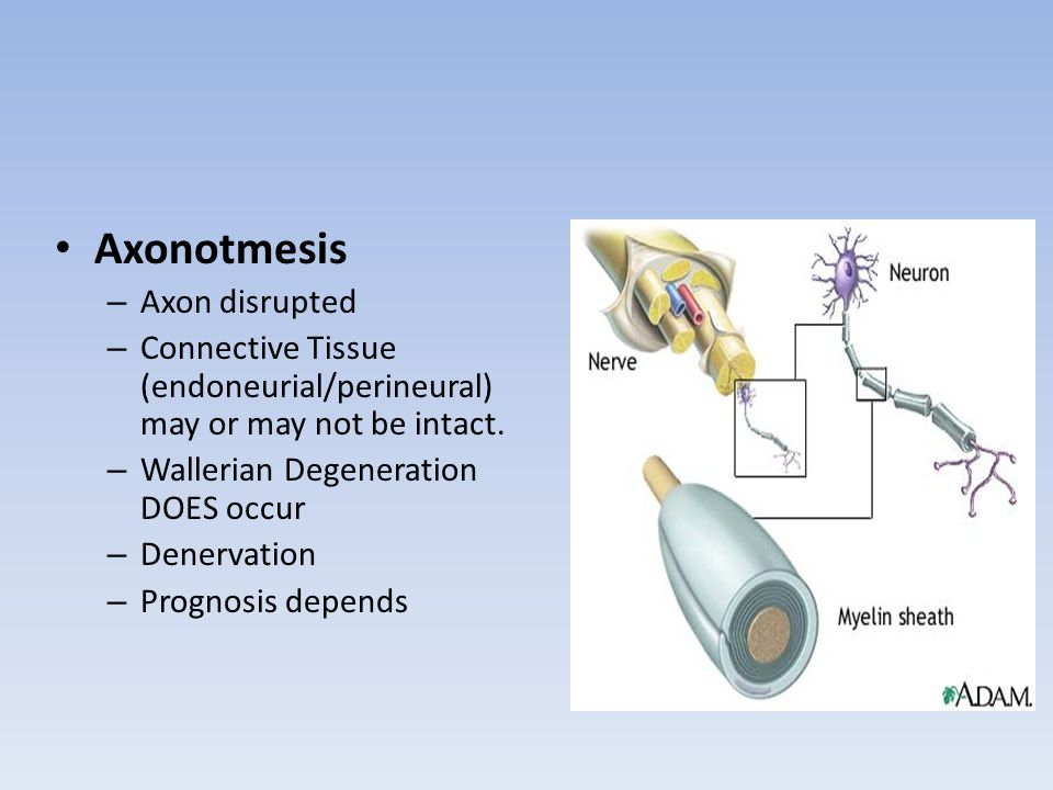 Axonotmesis – Axon disrupted – Connective Tissue (endoneurial/perineural) may or may not be intact. – Wallerian Degeneration DOES occur – Denervation