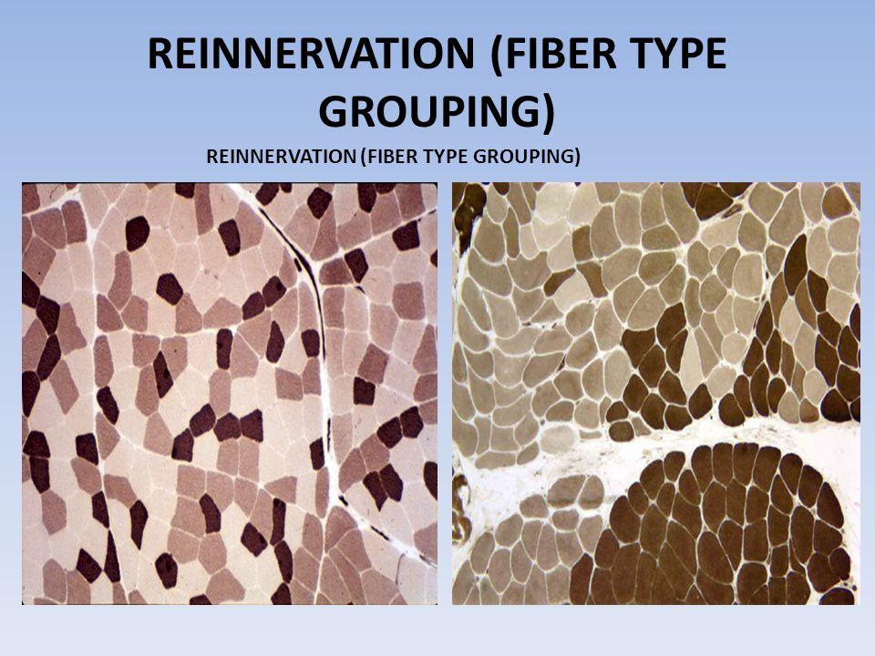 REINNERVATION (FIBER TYPE GROUPING)
