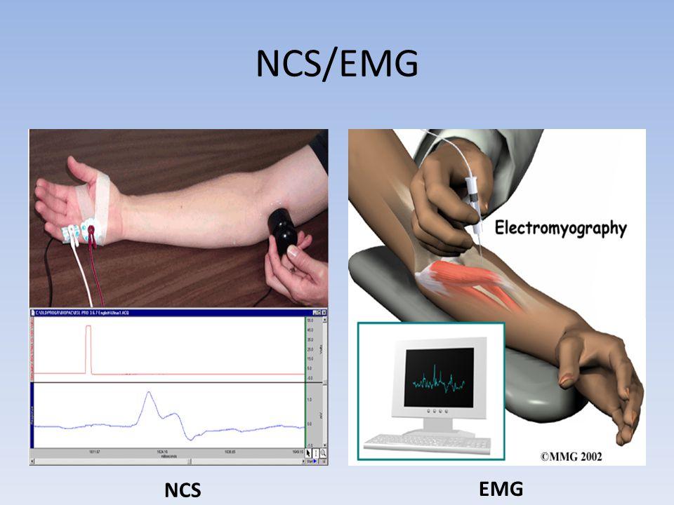 NCS/EMG NCS EMG