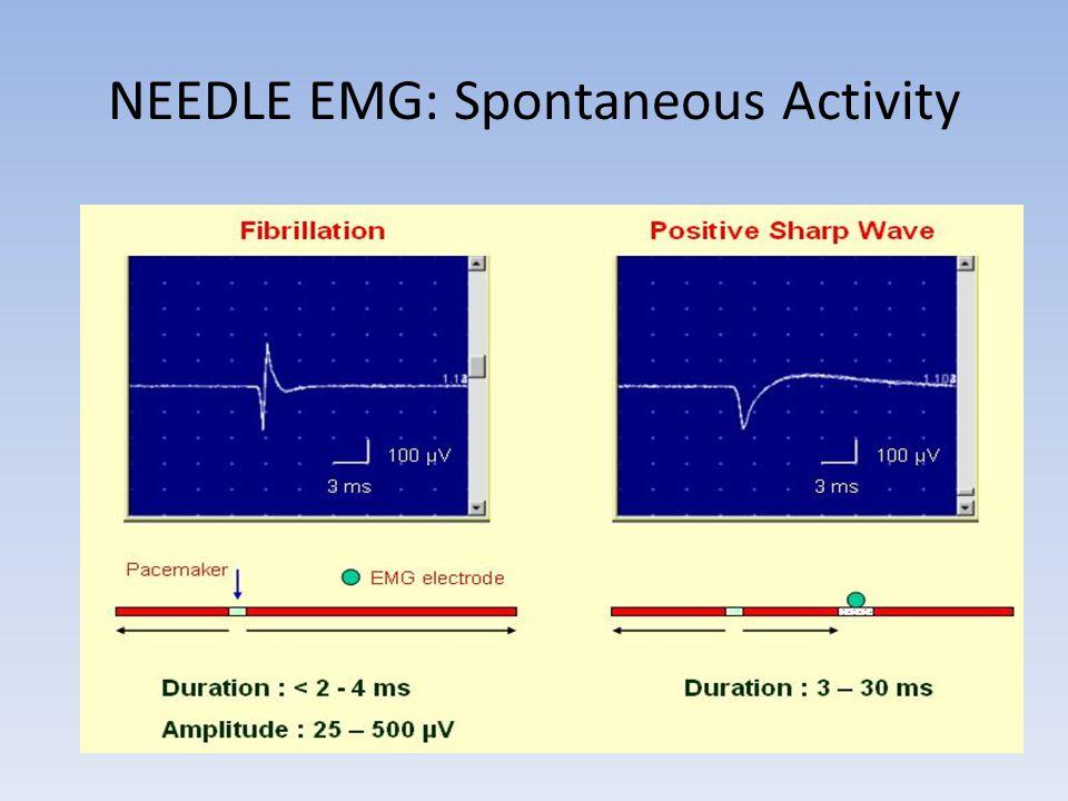 NEEDLE EMG: Spontaneous Activity