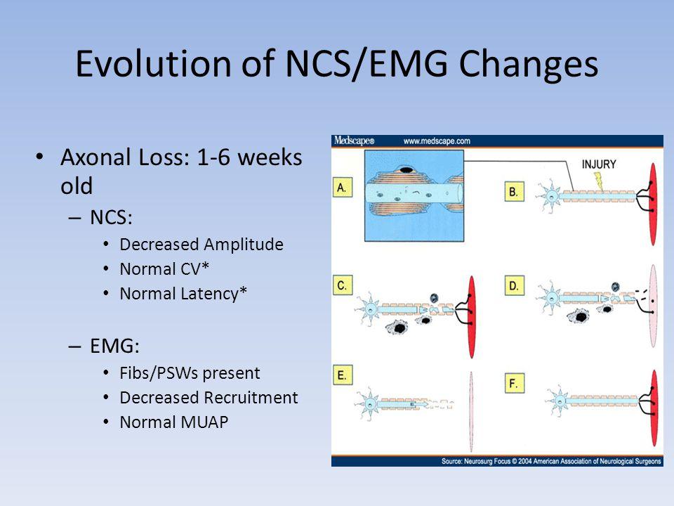 Evolution of NCS/EMG Changes Axonal Loss: 1-6 weeks old – NCS: Decreased Amplitude Normal CV* Normal Latency* – EMG: Fibs/PSWs present Decreased Recru
