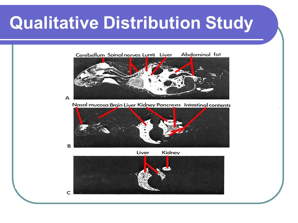 Qualitative Distribution Study MaleFemalePregnant Sacrificed and Sagittal Section (30 m) Whole Body Autoradiography