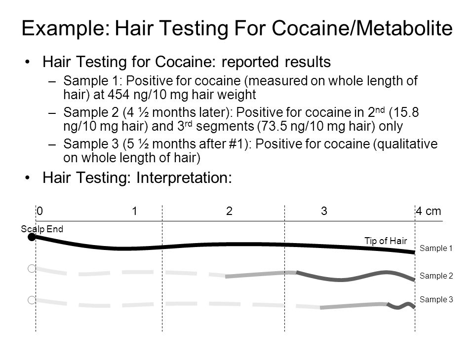 Example: Hair Testing For Cocaine/Metabolite Hair Testing for Cocaine: reported results –Sample 1: Positive for cocaine (measured on whole length of hair) at 454 ng/10 mg hair weight –Sample 2 (4 ½ months later): Positive for cocaine in 2 nd (15.8 ng/10 mg hair) and 3 rd segments (73.5 ng/10 mg hair) only –Sample 3 (5 ½ months after #1): Positive for cocaine (qualitative on whole length of hair) Hair Testing: Interpretation: Tip of Hair Scalp End 01234 cm Sample 1 Sample 2 Sample 3